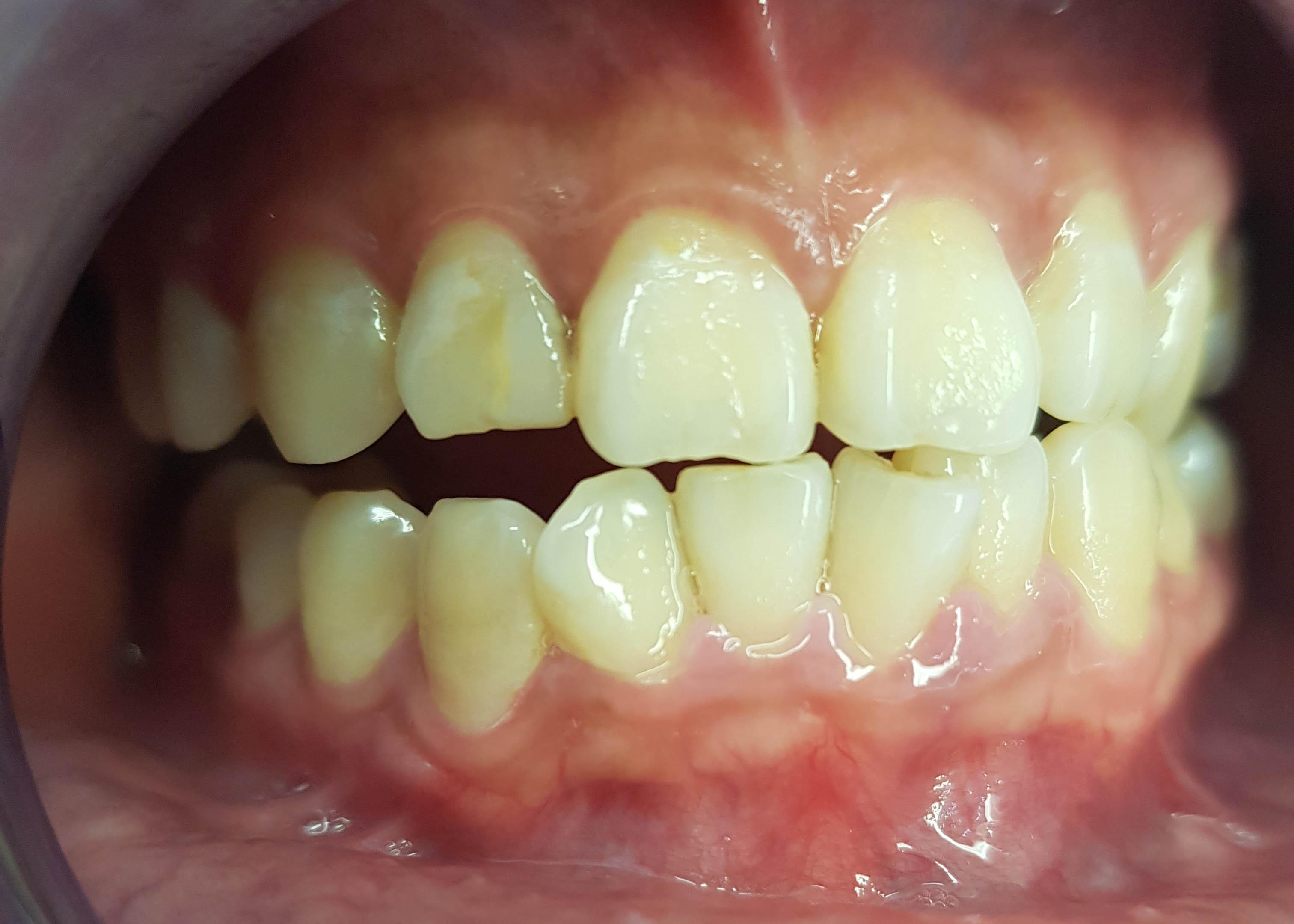 Esthetische Tandheelkunde