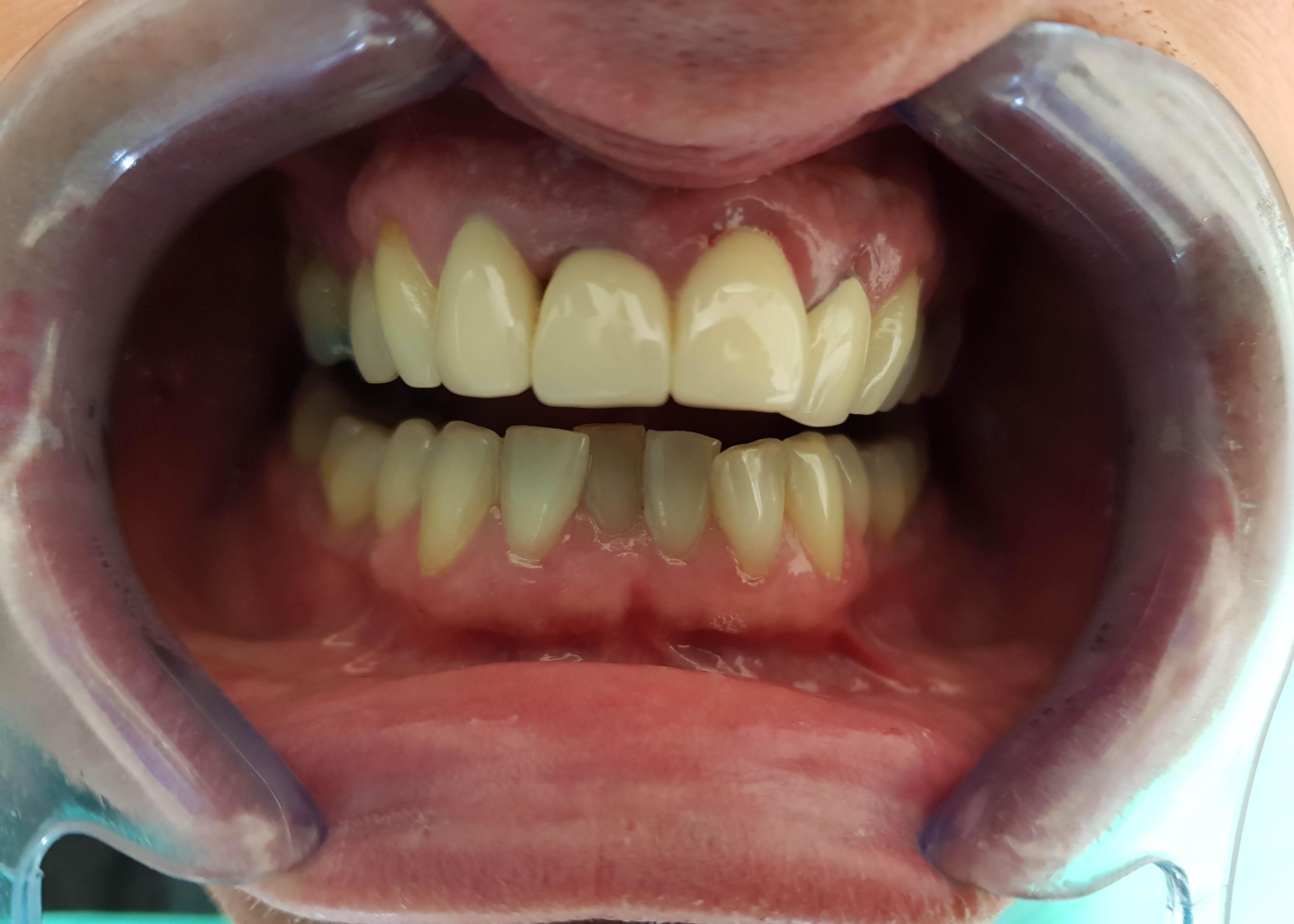 Tanden laseren